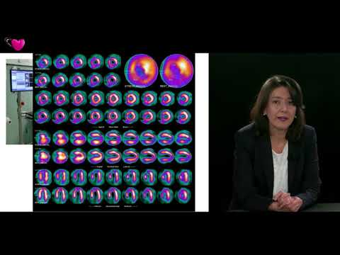 EACVI Free Webinar: What's New In Nuclear Cardiology?