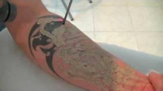 enlever les tatouages au laser, tattoo removal