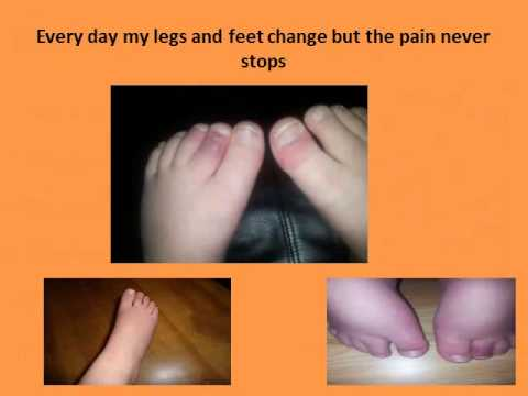 CRPS complex regional pain syndrome my bros story
