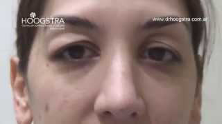 Cirugía de Párpados Blefaroplastía + Tratamiento Láser de Ojeras (13001)