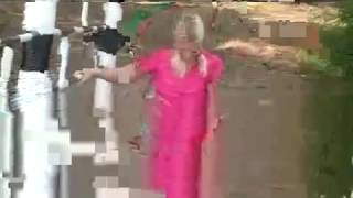 Repeat youtube video New Amputee Woman 345 - YouTube