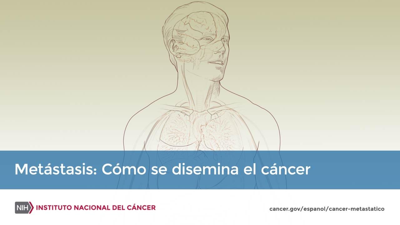Metastasis del cancer de testiculo