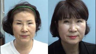 모든 성형외과에서 쌍꺼풀재수술 불가 판정은 50대 여성…