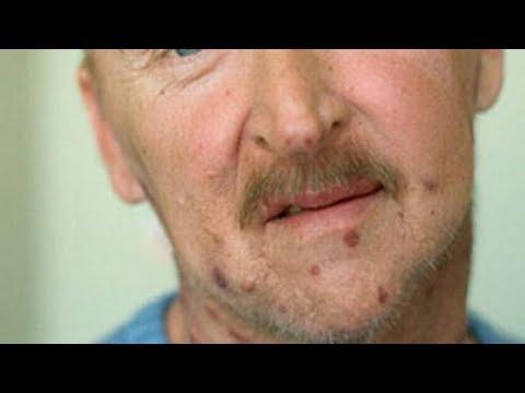 Sintomas Mais Comuns Do HIV  Em Homens