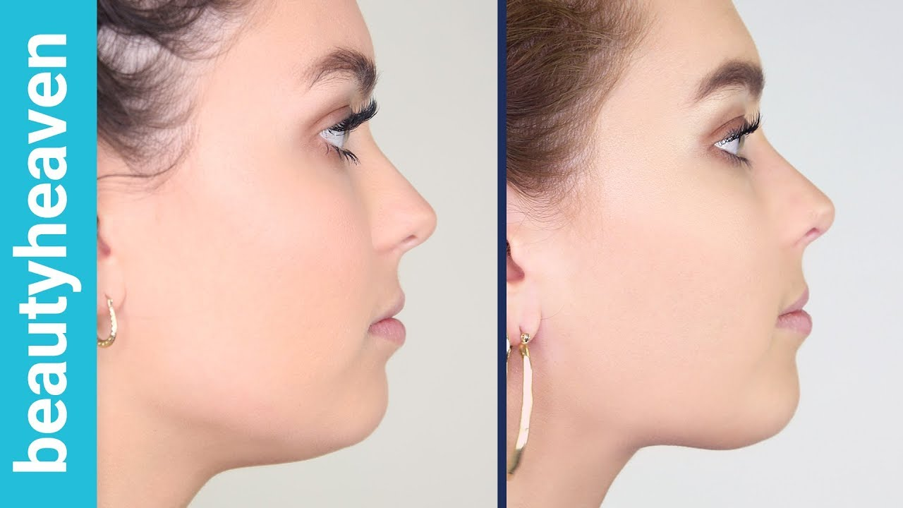facial slimming review botox karina lily pierdere în greutate