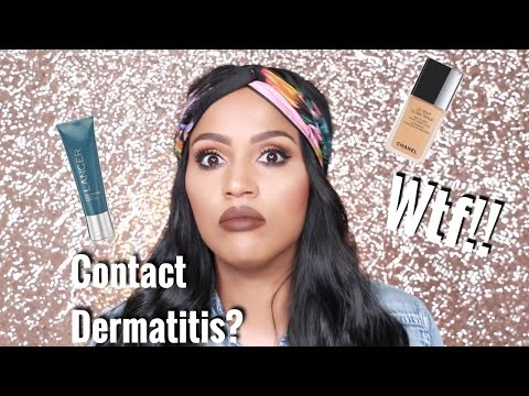 What Caused My Contact Dermatitis | MakeupShayla