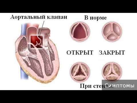 Аортальный стеноз. Как лечить аортальный стеноз.