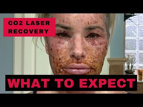 CO2 Laser Recovery - What To Expect