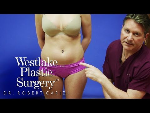 All Forms of Liposuction Explained by Dr. Robert Caridi of Westlake Plastic Surgery in Austin, Texas
