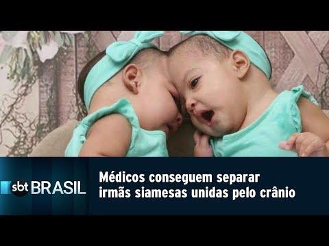 Médicos conseguem separar irmãs siamesas unidas pelo crânio | SBT Brasil (29/04/19)