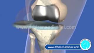 Surgery Knee Replacement Delhi