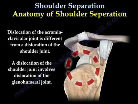 AC JOINT SEPARATION - Everything You Need To Know - Dr. Nabil Ebraheim