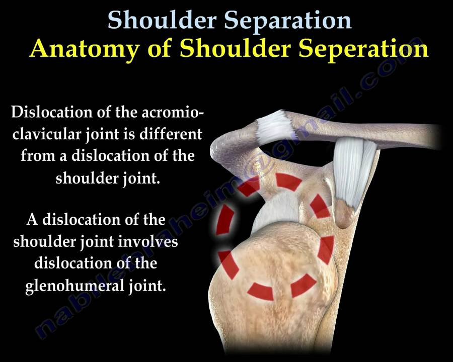 AC JOINT SEPARATION - Everything You Need To Know - Dr. Nabil ...