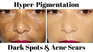 How To Remove Dark Black Patches, Skin Hyper-Pigmentation, Dark Spots Easily At Home