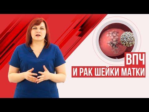 ВПЧ! Лечить или нет? Рак шейки матки и вирус папилломы человека.