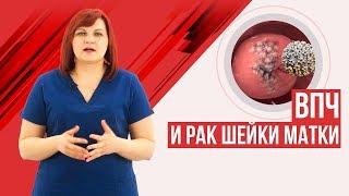 вПЧ! Лечить или нет? Рак шейки матки и вирус папилломы человека