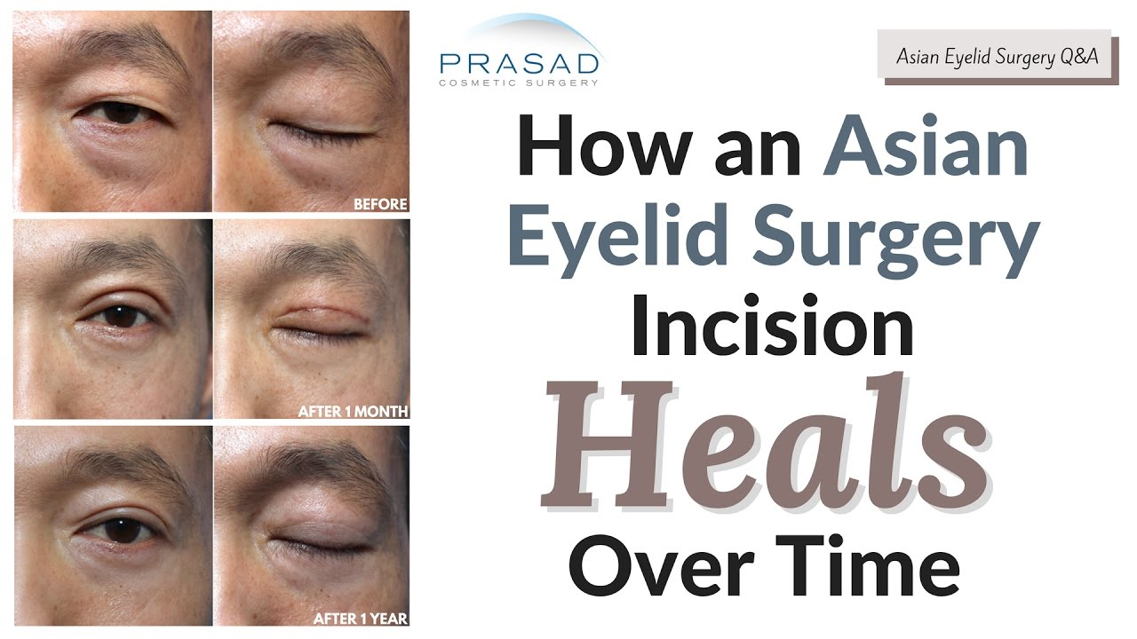 Bags Under Eyes Surgery Recovery Time