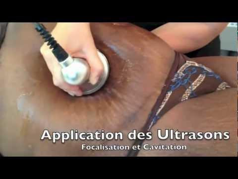 what is lipo cavitation