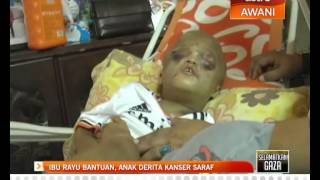 Ibu rayu bantuan, anak derita kanser saraf
