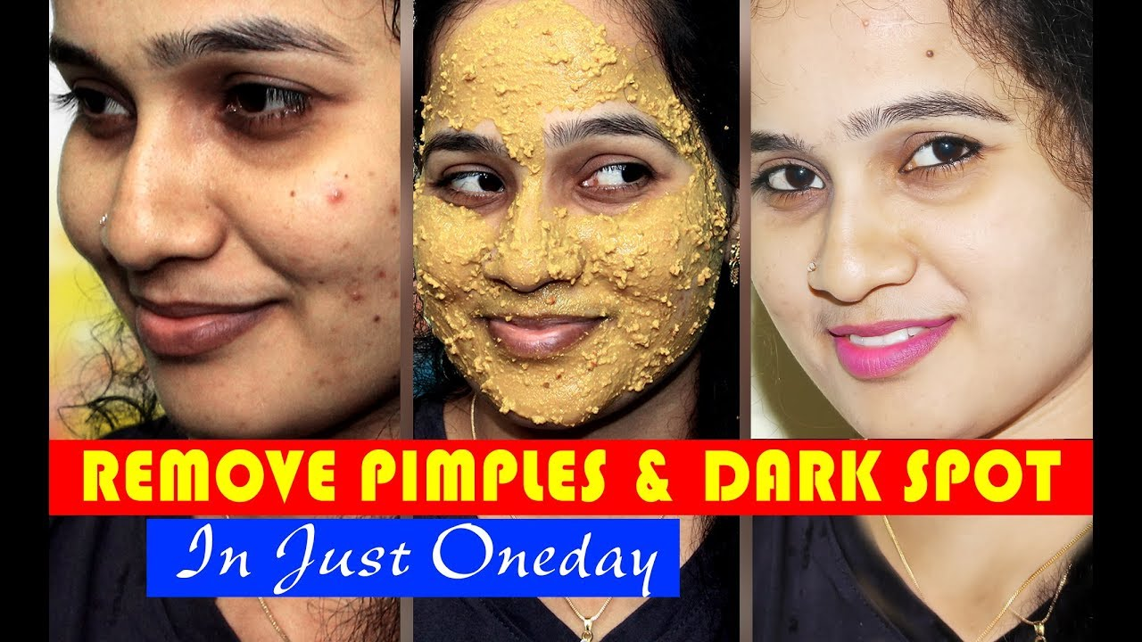 How to Remove PIMPLES, DARK SPOTS & ACNE SCARS Face Pack  அதிசயம்  Beauty  Tips  Sweety Tv