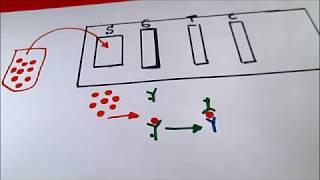 Equipo #6 PROYECTO II Inmunocromatografía del Antígeno Carcinoembrionario