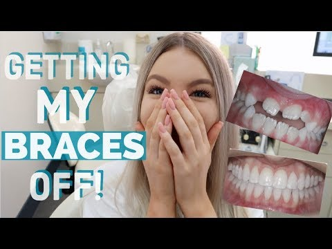 GETTING MY BRACES OFF!