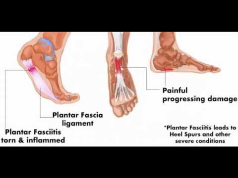 how-to-get-rid-of-heel-spurs-with-doweling-medical-and-treatments-treating-home-footwear