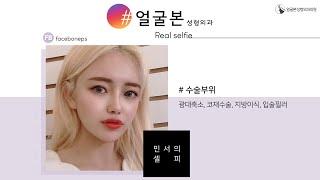 [얼굴본 REAL SELFIE]광대축소, 코재수술, 지…