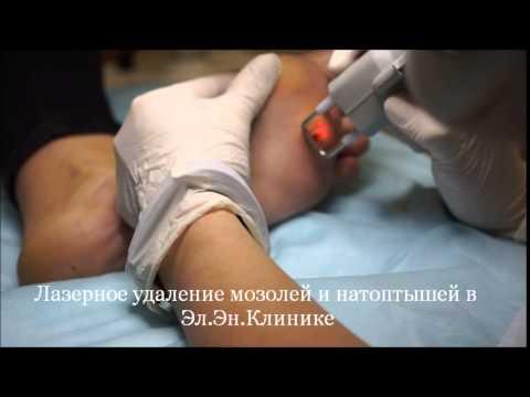 Удаление мозоли лазером - цены в Москве