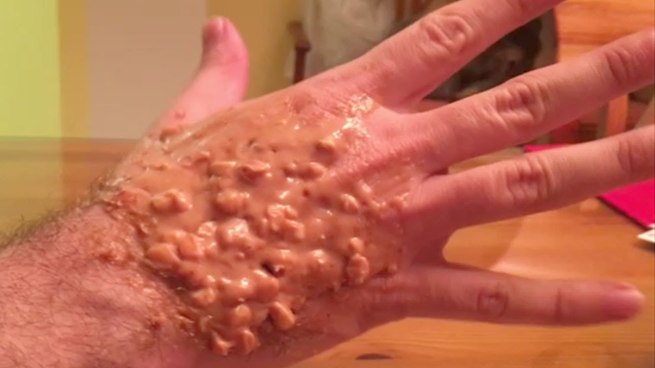 Incredible Trypophobia Hand Real Or Fake Youtube
