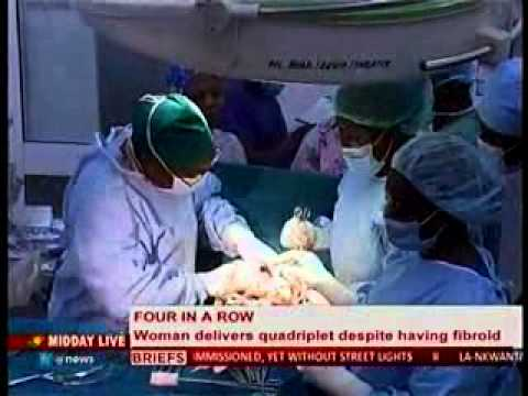 Midday Live - Police woman delivers quadriplets inspite of Fibroid - 29/1/2014