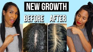 MANAGE NEW GROWTH WHILE STRETCHING YOUR RELAXER| SOFTEN NEW GROWTH