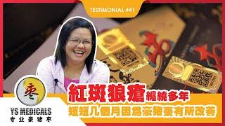YS Medicals Testimonial #41  红斑狼疮