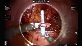 AAGL 2019 Intracorporeal Anastamosis Tutorial