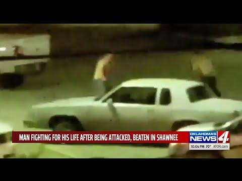 Men Yell Racial Slur After Attacking, Beating Shawnee Man
