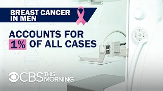 Breast cancer in men often diagnosed at more advanced stage