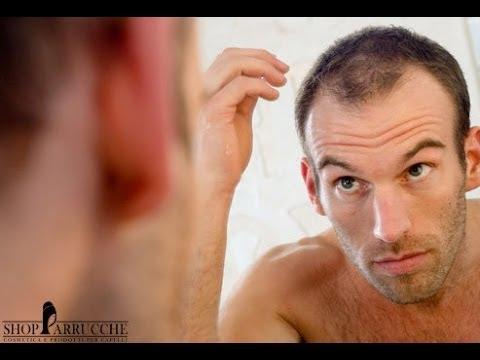 Tagli capelli corti uomo pochi capelli