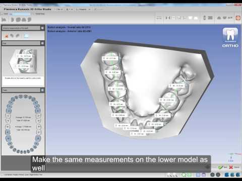 Dental Model Analyses in Planmeca Romexis® 3D Ortho Studio