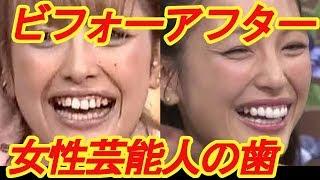 芸能人は歯が命!「歯科矯正」「セラミック」などで 歯が綺麗に整った女...