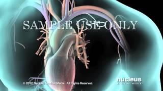 desfibrilador cardioversor implantable icd