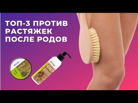 ТОП-3 против растяжек после родов.