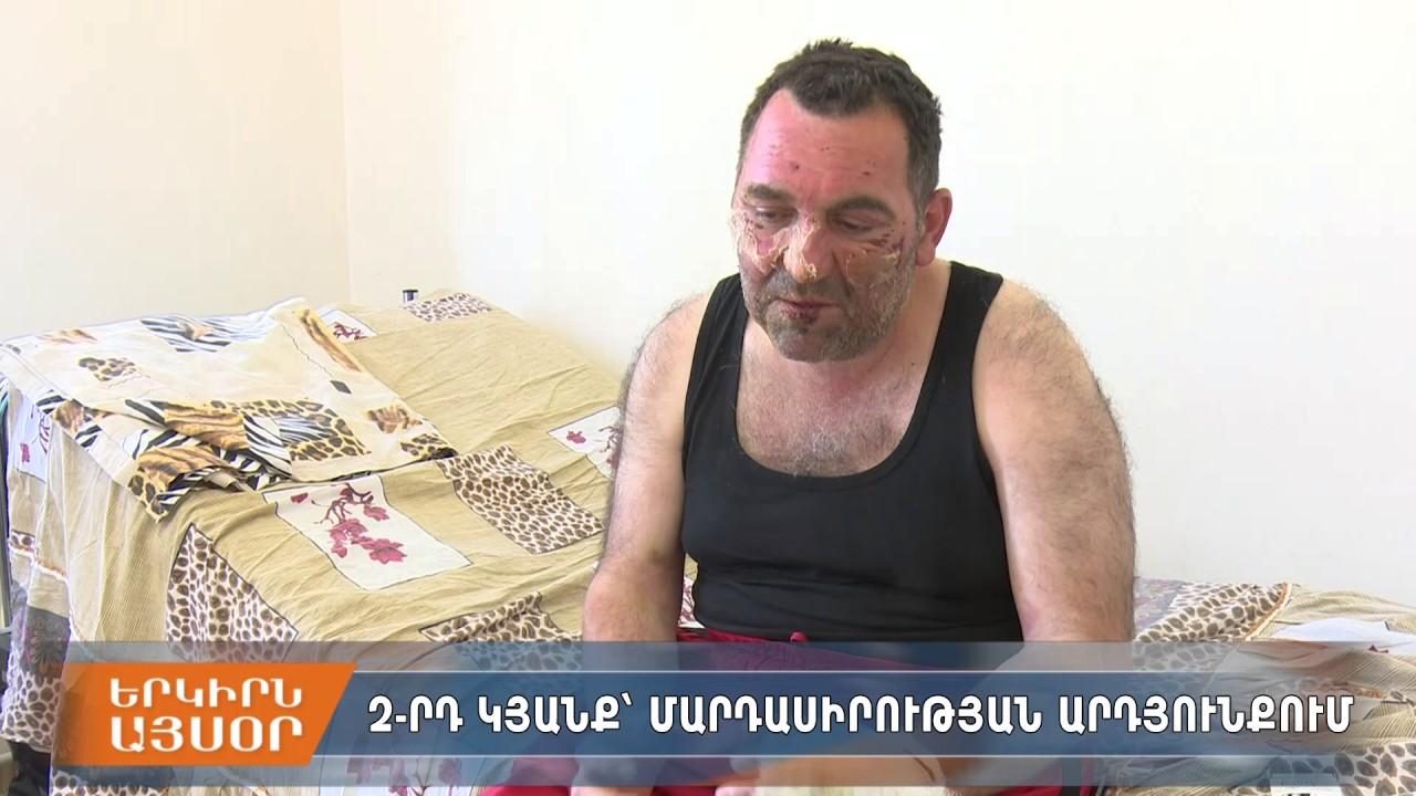 Image result for տուժածներին փրկած Արթուր Միքայելյան