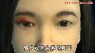 蘋果日報 - 20101026 - 港出現全球第三宗個案流黑眼淚的女人