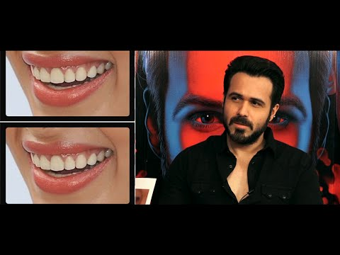 Emraan Hashmi takes our guess the lip challenge and the result is shocking!