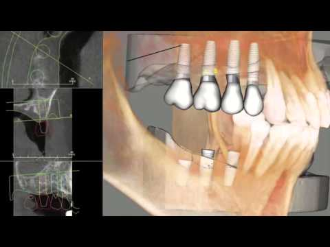 Cornerstone Dental Implants in Hillsborough New Jersey