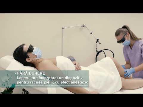 terapie cu laser video varicoză)