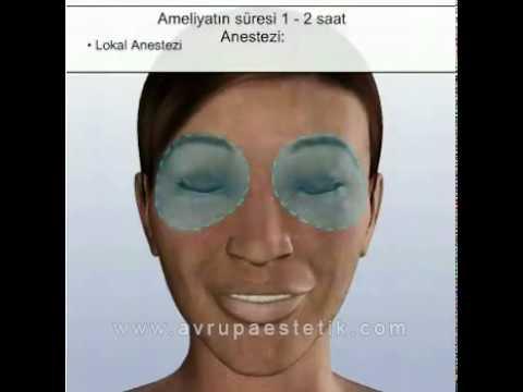 Göz Kapağı Estetiği.flv