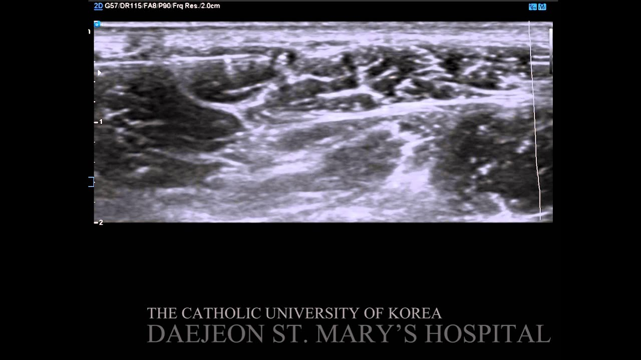 ultrasound guided lateral femoral cutaneous nerve block - youtube, Muscles
