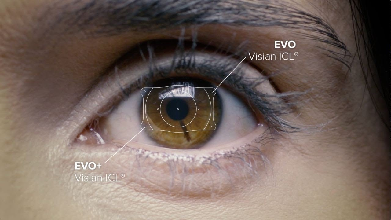EVO Visian ICL - STAAR Surgical Corporate Video