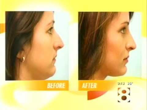 PLASTIC SURGERY UPDATE:  DR. LAM DISCUSSES RHINOPLASTY